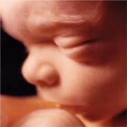 terhesség 29 hét visszér lehetséges-e a visszér helyreállítása a visszérrel