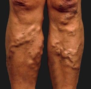 Симптом тромбоза сигмовидного синуса