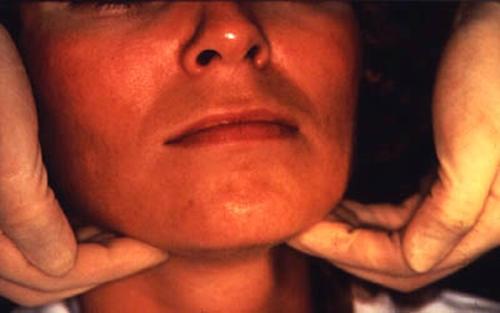 autoimmun pajzsmirigygyulladás fáj az ízületeket