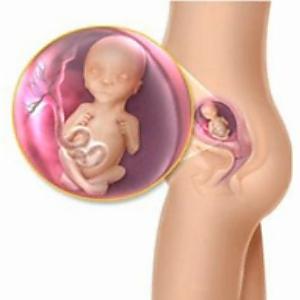 súlyvesztés a 13. hetes terhesnél)