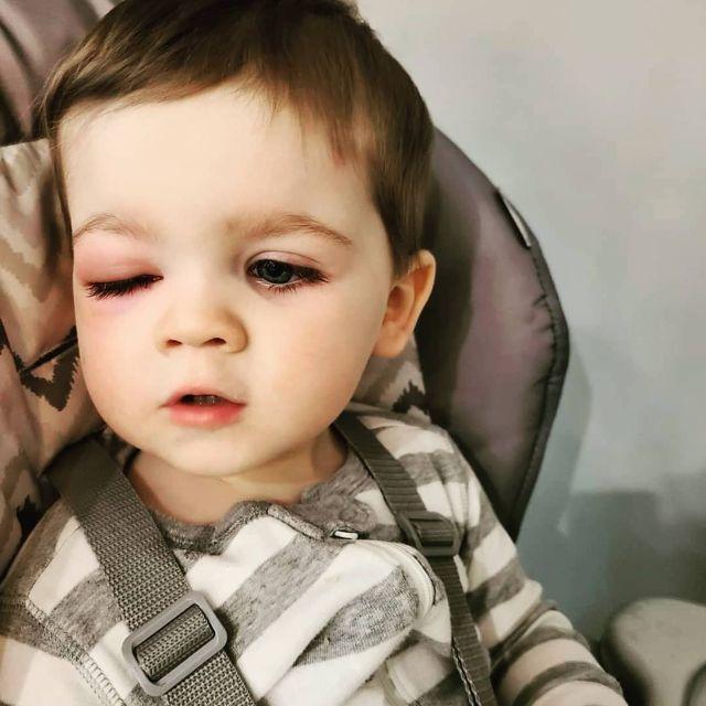 hogyan lát a szem látássérülés esetén