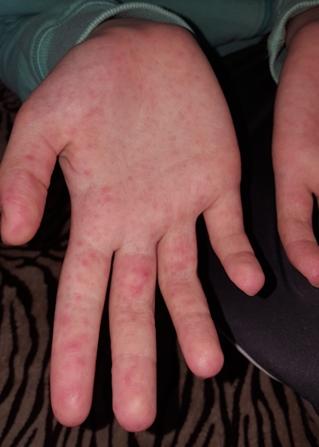az ujjakon vörös foltok viszketés kezelés
