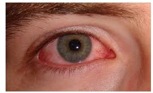száraz szem