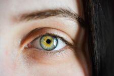 A száraz szem korunk betegsége