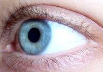A látásromlás típusai a nyaki osteochondrosisban, kezelés és megelőzés - Neuralgia May